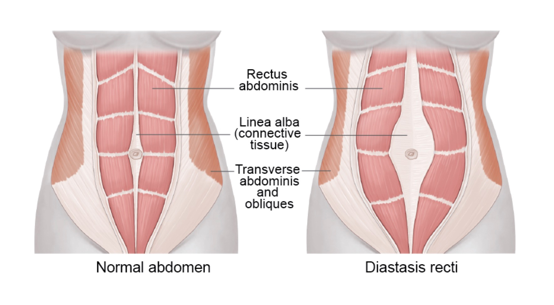 graphic showing abdominal diastasis
